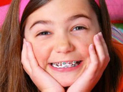 Niềng răng chỉnh răng hô lệch lạc