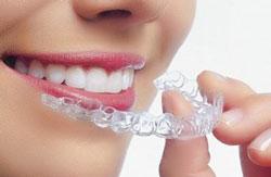 Làm trắng răng tẩy trắng răng tại nhà
