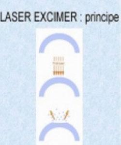 Hỗn Hợp Khí Laser