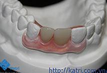 Răng nhựa