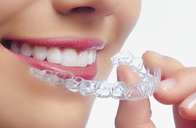 Làm trắng răng, tẩy trắng răng tại nhà