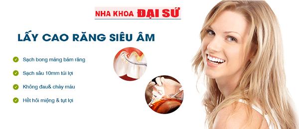 Lấy cao răng siêu âm