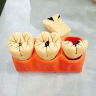 Mô hình răng sâu