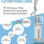 Máy laser trục khuỷu