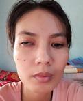 Chữa song thị sau chấn thương